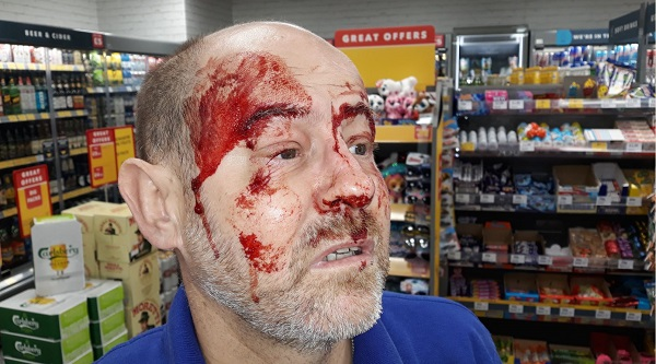 The injured shop worker